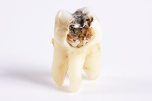 Root canal therapy in Natick removes infected pulp